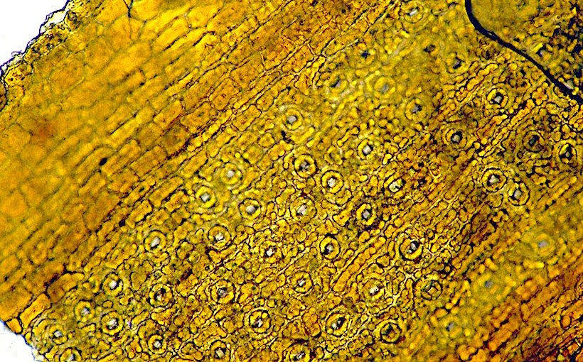 Stomata in Taxus(Gymnosperms)
