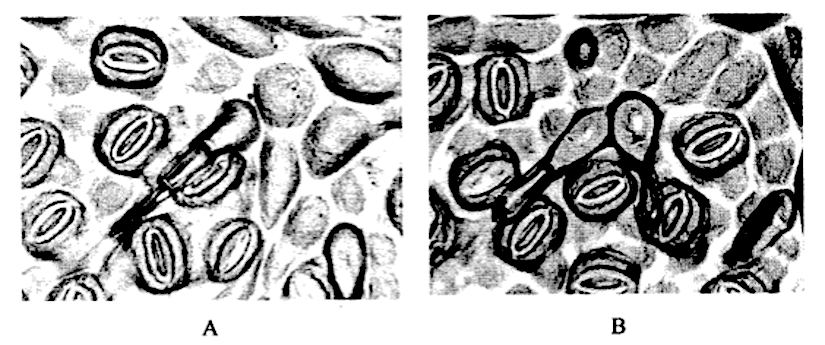 Analysis of stomata and leaf trichomes in Quercus roburgenotypes.